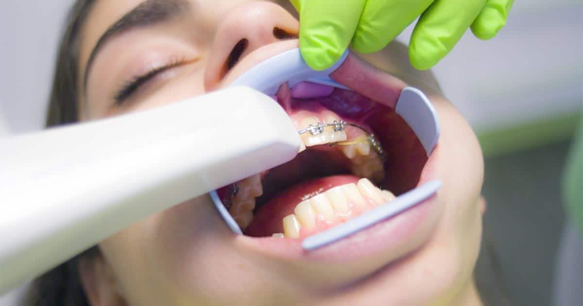 ดัดฟันมีกี่แบบ ? ชวนทำความรู้จักการจัดฟันประเภทต่างๆ และการเตรียมตัวที่ถูกต้องกัน !